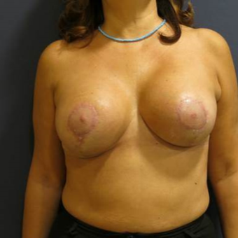45-54 year old woman treated with Breast Lift with Implants after 3841771