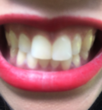 22 year old woman treated with 8 Porcelain Veneers for bunny teeth before 3420943