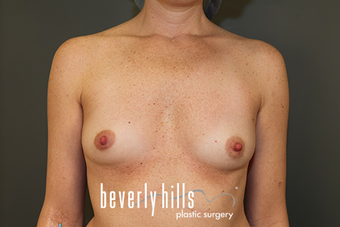 Silicone Breast Augmentation before 1523779