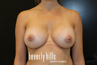 Silicone Breast Augmentation after 1523779