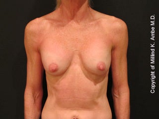 32 Year Old Female Breast Revision Patient