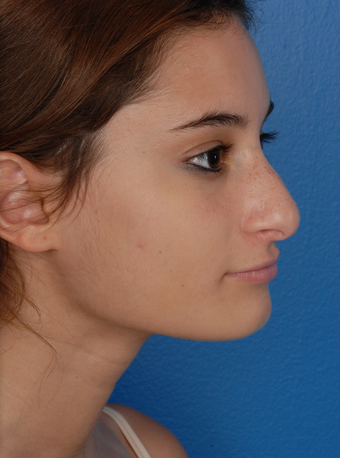 Rhinoplasty (Nose Surgery) before 1127253