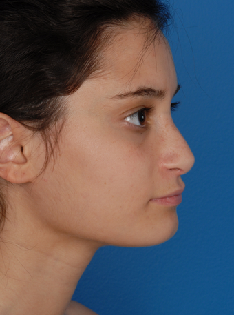 Rhinoplasty (Nose Surgery) after 1127253