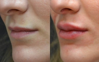 Restylane Filler to Lips before 1306469