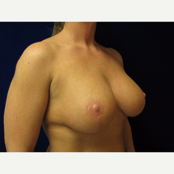 35-44 year old woman treated with Breast Lift with Implants after 3718366