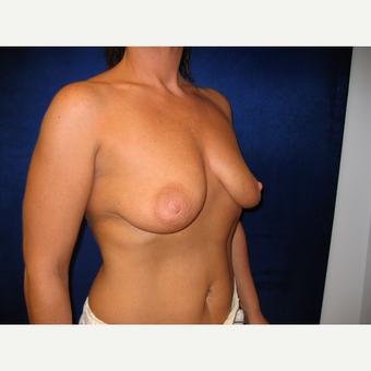 35-44 year old woman treated with Breast Lift with Implants before 3718366