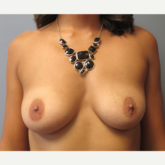 25-34 year old woman treated with Breast Augmentation before 3538918