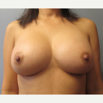 25-34 year old woman treated with Breast Augmentation after 3538918
