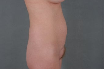 42 year old woman who was treated for a belly button hernia and loose skin to her abdomen after a c-section. 1114430