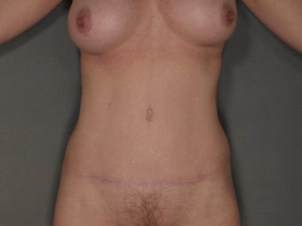 42 year old woman who was treated for a belly button hernia and loose skin to her abdomen after a c-section. after 1114430
