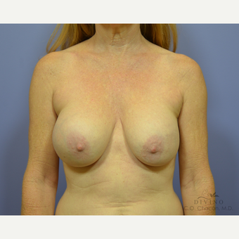 55-64 year old woman treated with Breast Implant Removal before 3415881