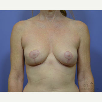 55-64 year old woman treated with Breast Implant Removal after 3415881
