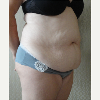 45-54 year old woman treated with Tummy Tuck before 3145774