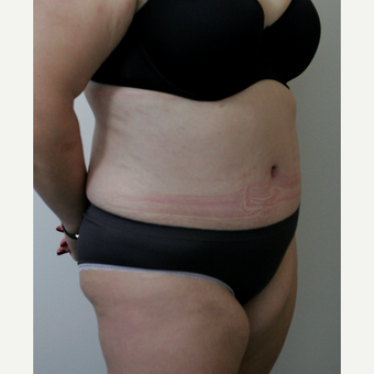 45-54 year old woman treated with Tummy Tuck after 3145774