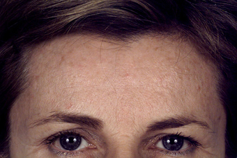 Forehead Lift before 1418801