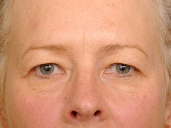 49 year old female before and one year after having a quality upper eyelid correction. before 1255236