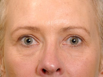 49 year old female before and one year after having a quality upper eyelid correction. after 1255236