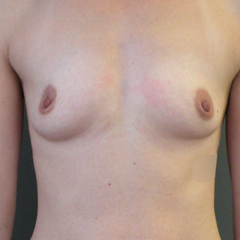 35-44 year old woman treated with Mentor Breast Implants 3054643