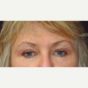 Brow Lift after 3148582