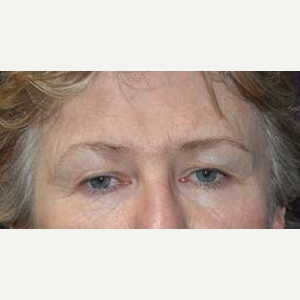 Brow Lift before 3148582