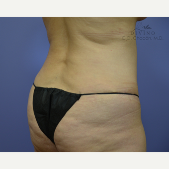 45-54 year old woman treated with Liposuction after 3421372