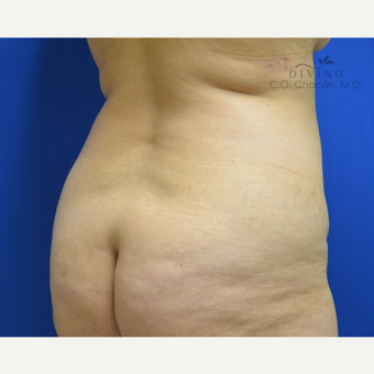 45-54 year old woman treated with Liposuction before 3421372