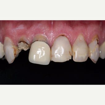 45-54 year old man treated with Dental Crown before 3629745