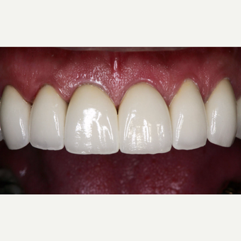 45-54 year old man treated with Dental Crown after 3629745