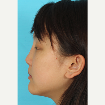 25-34 year old woman treated with Rhinoplasty after 3629078