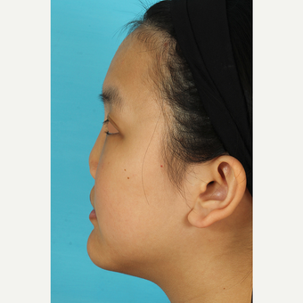 25-34 year old woman treated with Rhinoplasty before 3629078