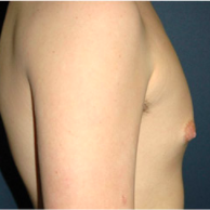 15 year old man treated with Male Breast Reduction after 3720921