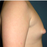 15 year old man treated with Male Breast Reduction before 3720921