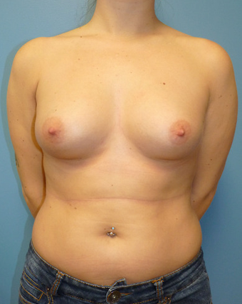 Breast Fat Transfer before 1579670