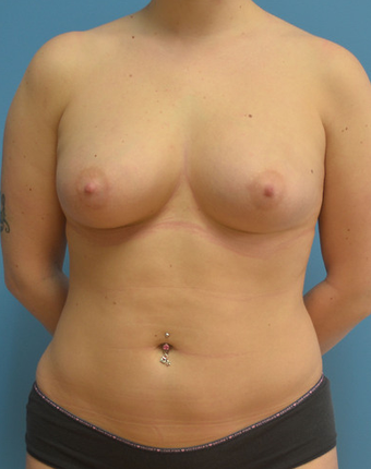 Breast Fat Transfer after 1579670