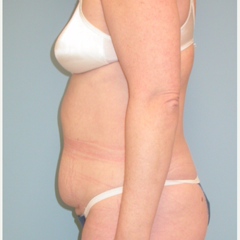 40 year old woman treated with Tummy Tuck before 3343737