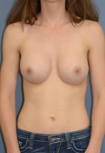 31 yo TransAxillary, Endoscopic, Subpectoral silicone breast augmentation after 1845209
