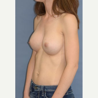 31 yo TransAxillary, Endoscopic, Subpectoral silicone breast augmentation 1845209
