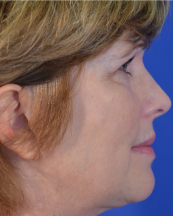 58 year old woman post Facelift, Upper Eyelid Blepharoplasty and Fat Transfer to the Cheeks after 3743081
