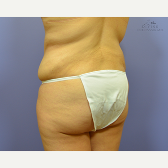 35-44 year old woman treated with Liposuction after 3421337