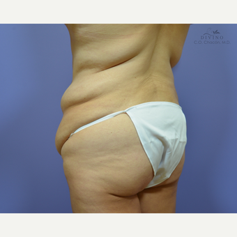 35-44 year old woman treated with Liposuction before 3421337