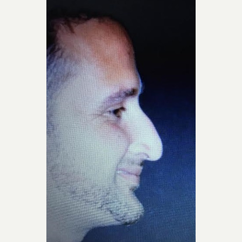 35-44 year old man treated with Rhinoplasty before 3260871