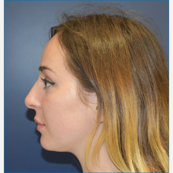 18-24 year old woman treated with Rhinoplasty after 3341291