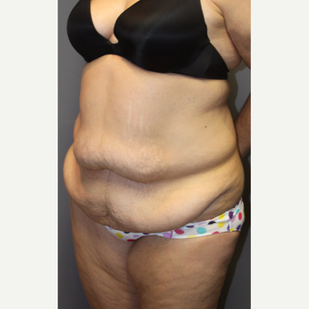 35-44 year old woman treated with Tummy Tuck before 3140824