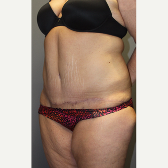 35-44 year old woman treated with Tummy Tuck after 3140824