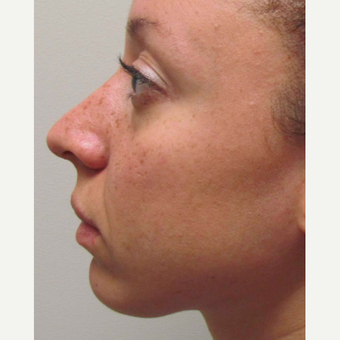 Elective Rhinoplasty for this 28 Year Old Woman before 3042964