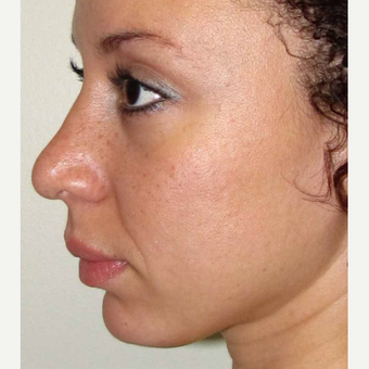 Elective Rhinoplasty for this 28 Year Old Woman after 3042964