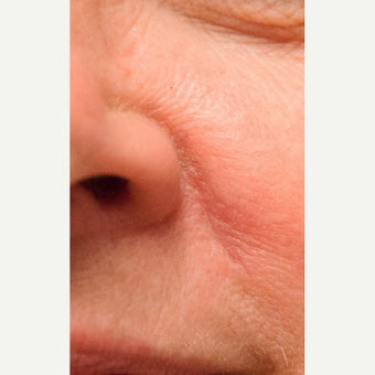 35-44 year old woman treated with Scar Removal 1863282