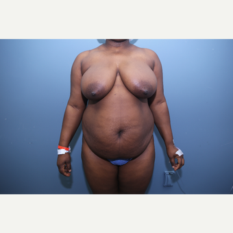 35-44 year old woman treated with Mommy Makeover before 3657639