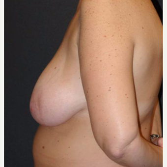 45-54 year old woman treated with Breast Lift with Implants before 3495818