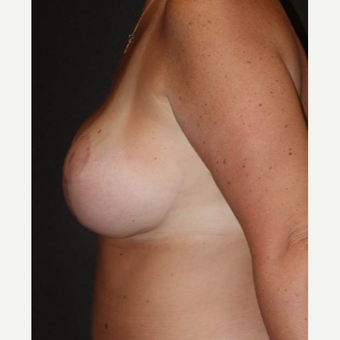 45-54 year old woman treated with Breast Lift with Implants after 3495818